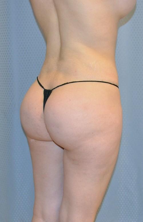 brazilian-butt-lift-cosmetic-surgery-redlands-woman-after-oblique-dr-maan-kattash