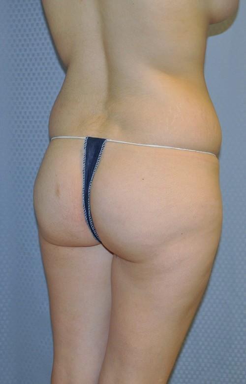 brazilian-butt-lift-cosmetic-surgery-redlands-woman-before-obique-dr-maan-kattash
