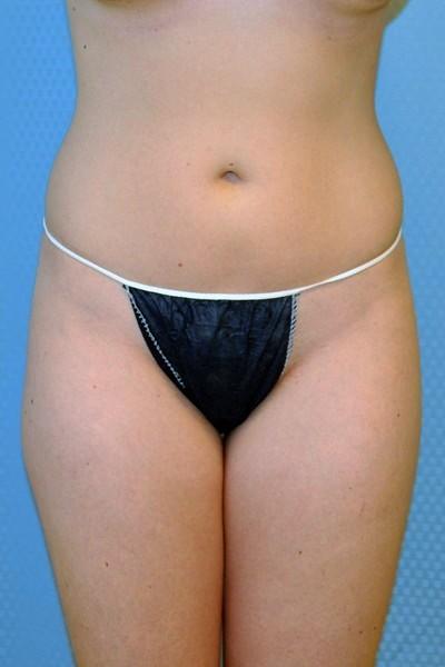 brazilian-butt-lift-plastic-surgery-irvine-woman-cosmetic-before-front-dr-maan-kattash