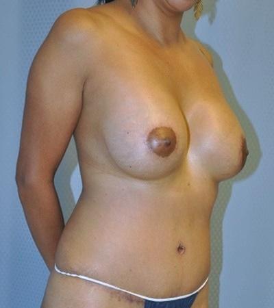 breast-augmentaion-lift-plastic-surgery-los-angeles-woman-after-oblique-dr-maan-kattash
