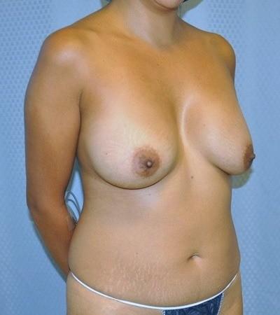 breast-augmentaion-lift-plastic-surgery-los-angeles-woman-before-oblique-dr-maan-kattash