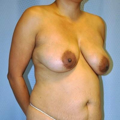 breast-lift-vertical-mastopexy-plastic-surgery-beverly-hills-woman-before-oblique-dr-maan-kattash