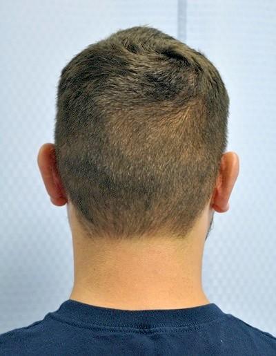 otoplasty-ear-surgery-pinning-correction-orange-county-irvine-man-after-back-dr-maan-kattash