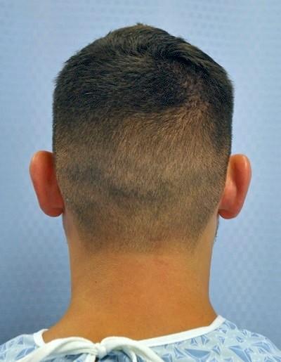 otoplasty-ear-surgery-pinning-correction-orange-county-irvine-man-before-back-dr-maan-kattash