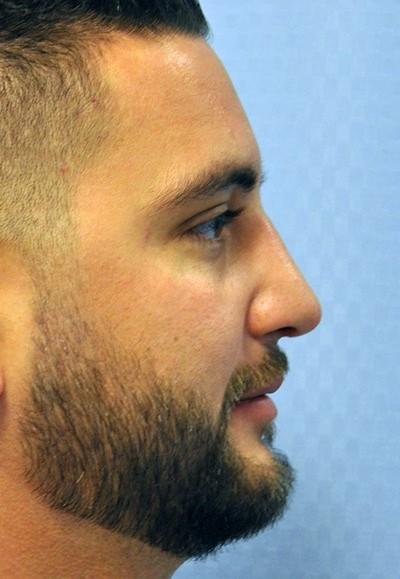revision-rhinoplasty-aesthetic-plastic-surgery-nose-job-irvine-man-after-side-dr-maan-kattash
