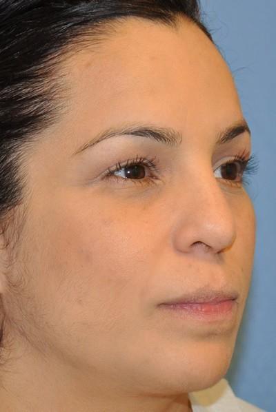 rhinoplasty-plastic-surgery-nose-job-beverly-hills-woman-after-oblique-dr-maan-kattash