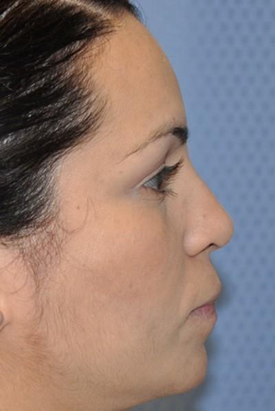 rhinoplasty-plastic-surgery-nose-job-beverly-hills-woman-after-side-dr-maan-kattash
