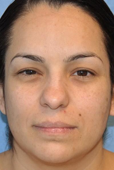 rhinoplasty-plastic-surgery-nose-job-beverly-hills-woman-before-front-dr-maan-kattash