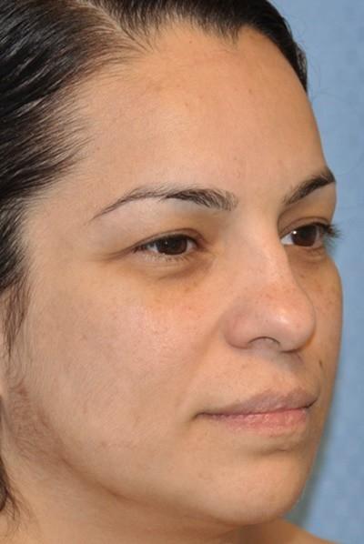 rhinoplasty-plastic-surgery-nose-job-beverly-hills-woman-before-oblique-dr-maan-kattash