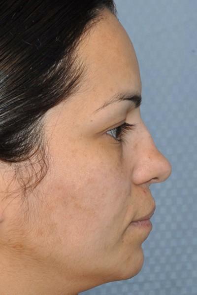 rhinoplasty-plastic-surgery-nose-job-beverly-hills-woman-before-side-dr-maan-kattash
