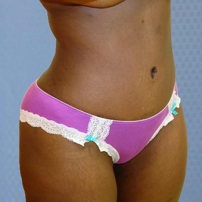 tummy-tuck-abdominoplasty-brazilian-butt-transfer-orange-county-woman-after-oblique-dr-maan-kattash
