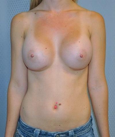 breast-enlargement-augmentation-plastic-surgery-beverly-hills-woman-after-front-dr-maan-kattash
