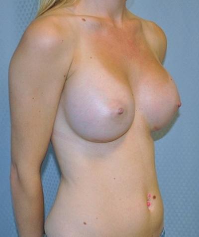 breast-enlargement-augmentation-plastic-surgery-beverly-hills-woman-after-oblique-dr-maan-kattash