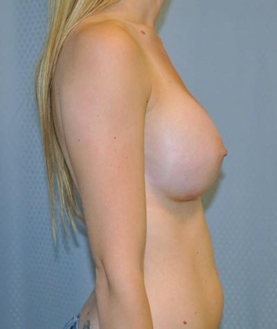 breast-enlargement-augmentation-plastic-surgery-beverly-hills-woman-after-side-dr-maan-kattash