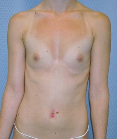 breast-enlargement-augmentation-plastic-surgery-beverly-hills-woman-before-front-dr-maan-kattash