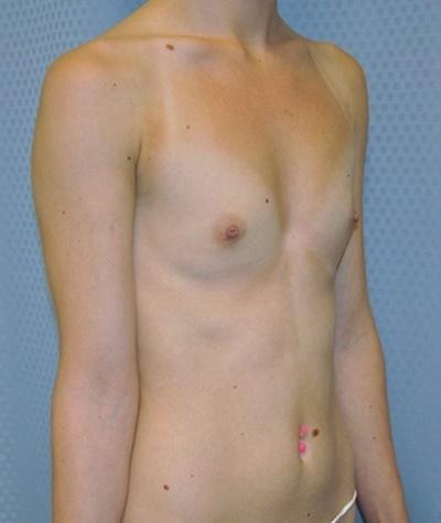 breast-enlargement-augmentation-plastic-surgery-beverly-hills-woman-before-oblique-dr-maan-kattash