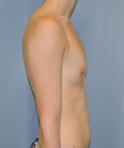breast-enlargement-augmentation-plastic-surgery-beverly-hills-woman-before-side-dr-maan-kattash