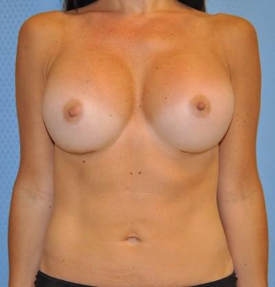 breast-enlargement-augmentation-plastic-surgery-claremont-woman-after-front-dr-maan-kattash