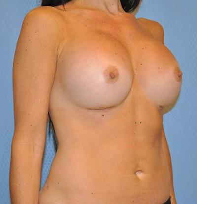 breast-enlargement-augmentation-plastic-surgery-claremont-woman-after-oblique-dr-maan-kattash