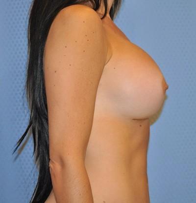breast-enlargement-augmentation-plastic-surgery-claremont-woman-after-side-dr-maan-kattash