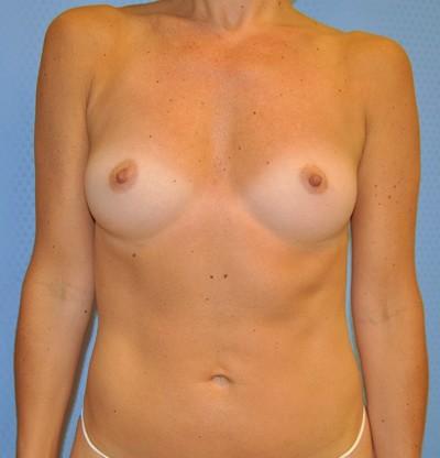 breast-enlargement-augmentation-plastic-surgery-claremont-woman-before-front-dr-maan-kattash