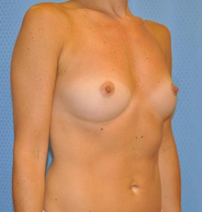breast-enlargement-augmentation-plastic-surgery-claremont-woman-before-oblique-dr-maan-kattash