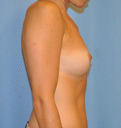 breast-enlargement-augmentation-plastic-surgery-claremont-woman-before-side-dr-maan-kattash