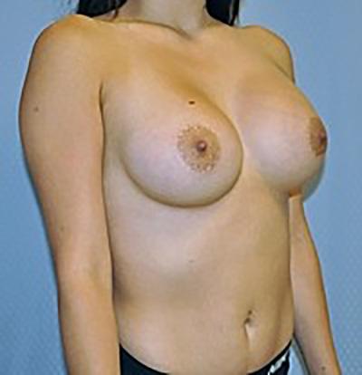 breast-enlargement-augmentation-plastic-surgery-inland-empire-woman-after-oblique-dr-maan-kattash