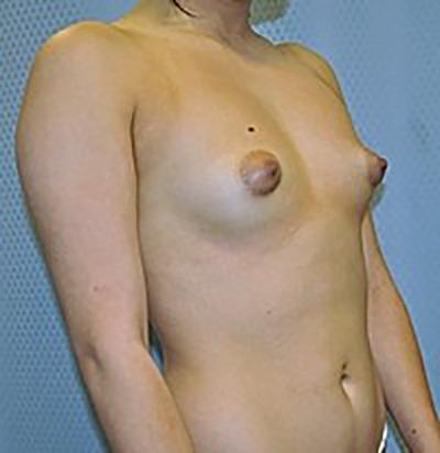 breast-enlargement-augmentation-plastic-surgery-inland-empire-woman-before-oblique-dr-maan-kattash