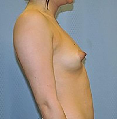 breast-enlargement-augmentation-plastic-surgery-inland-empire-woman-before-side-dr-maan-kattash