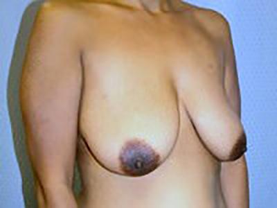 breast-lift-plastic-surgery-mastopexy-los-angeles-woman-before-oblique-dr-maan-kattash