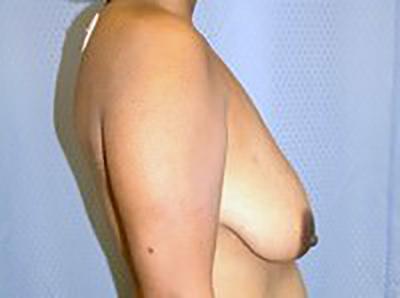 breast-lift-plastic-surgery-mastopexy-los-angeles-woman-before-side-dr-maan-kattash