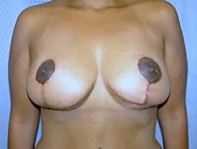 breast-lift-plastic-surgery-mastopexy-los-angeles-woman-woman-after-dr-maan-kattash