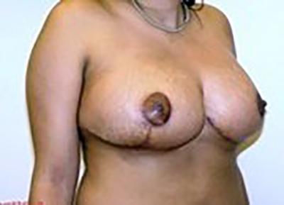 breast-reduction-plastic-surgery-los-angeles-woman-after-oblique-dr-maan-kattash-2