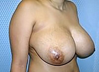 breast-reduction-plastic-surgery-los-angeles-woman-before-oblique-dr-maan-kattash-2