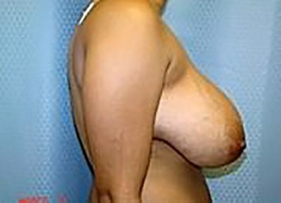 breast-reduction-plastic-surgery-los-angeles-woman-before-side-dr-maan-kattash (2)-2