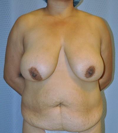 breast-reduction-plastic-surgery-rancho-cucamonga-woman-before-front-dr-maan-kattash