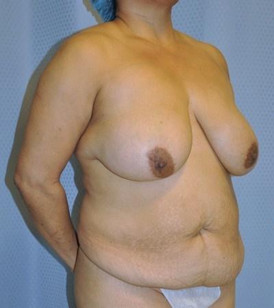 breast-reduction-plastic-surgery-rancho-cucamonga-woman-before-oblique-dr-maan-kattash