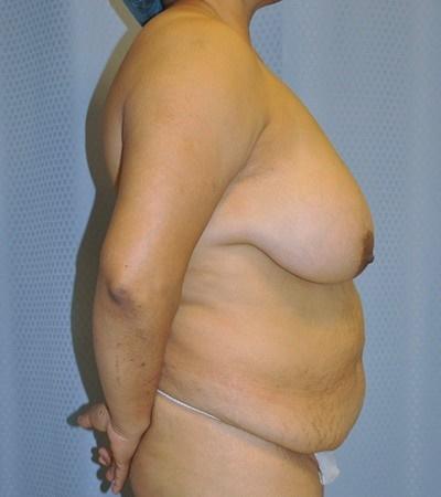 breast-reduction-plastic-surgery-rancho-cucamonga-woman-before-side-dr-maan-kattash