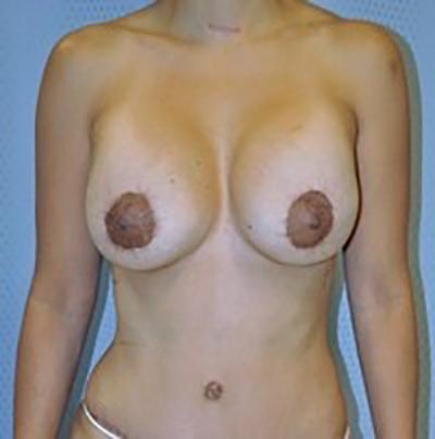 breast-revision-rancho-cucamonga-woman-after-front-dr-maan-kattash