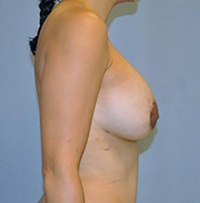 breast-revision-rancho-cucamonga-woman-after-side-dr-maan-kattash