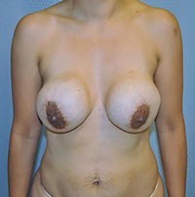 breast-revision-rancho-cucamonga-woman-before-front-dr-maan-kattash