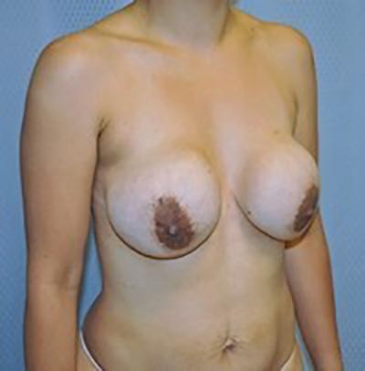 breast-revision-rancho-cucamonga-woman-before-oblique-dr-maan-kattash