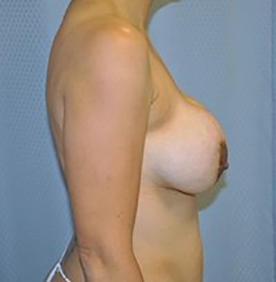 breast-revision-rancho-cucamonga-woman-before-side-dr-maan-kattash