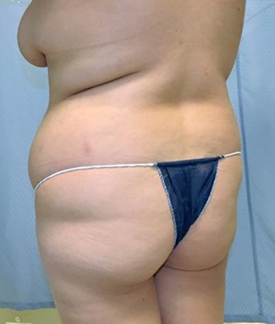 buttock-augmentation-brazilian-butt-lift-claremont-woman-before-back-dr-maan-kattash