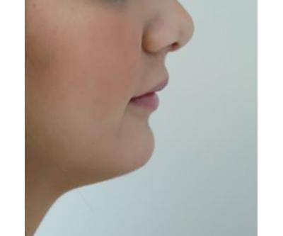 chin-augmentation-cheek-plastic-surgery-beverly-hills-woman-after-side-dr-maan-kattash