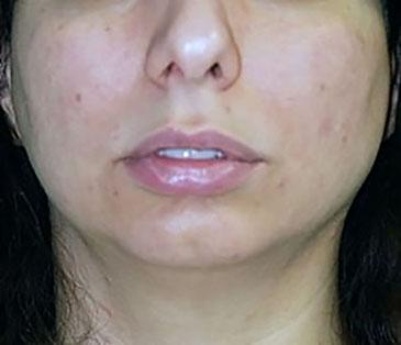 chin-augmentation-cheek-plastic-surgery-los-angeles-woman-before-front-dr-maan-kattash-2