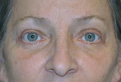 eyelid-lift-blepharoplasty-cosmetic-surgery-rancho-cucamonga-woman-after-front-dr-maan-kattash