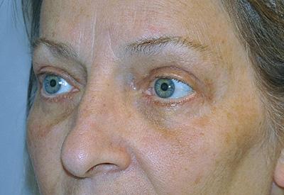 eyelid-lift-blepharoplasty-cosmetic-surgery-rancho-cucamonga-woman-after-left-ob-dr-maan-kattash