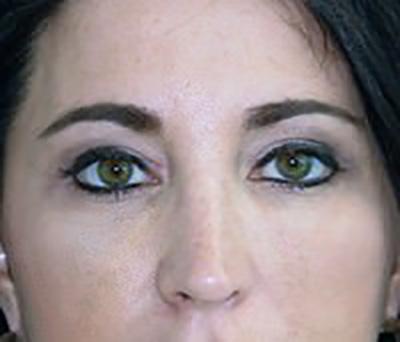 eyelid-lift-blepharoplasty-plastic-surgery-beverly-hills-woman-after-front-dr-maan-kattash